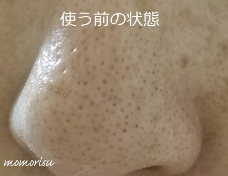 DUOザクレンジングバームを使う前のいちご鼻