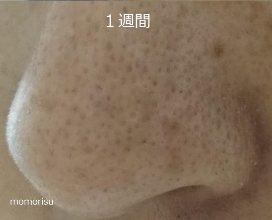 毛穴改善を始めて1週間目の毛穴の画像
