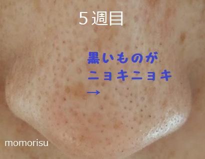 鼻の黒ずみ毛穴の様子で黒い角栓がでてきた画像