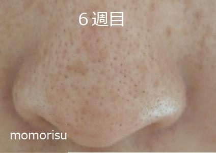 鼻の黒ずみ毛穴の様子6週目