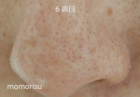 鼻の黒ずみ毛穴が少なくなってきた画像