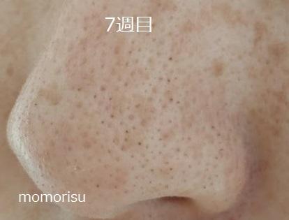鼻の黒ずみ毛穴7週目の様子で透明感が増した画像