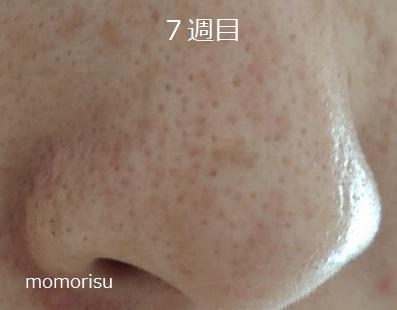 鼻の黒ずみ毛穴7週目の様子