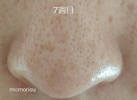 鼻の黒ずみ毛穴の様子7週目
