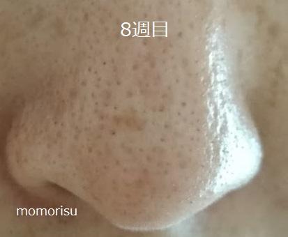 鼻の黒ずみ毛穴8週目の様子
