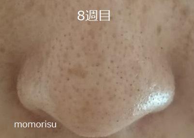 鼻の毛穴8週目の画像