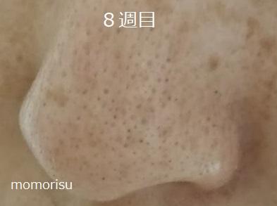 鼻の黒ずみ毛穴8週目の様子左向き