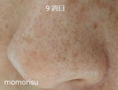 毛穴改善9週目 鼻の左向き画像