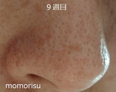 毛穴改善9週目 鼻の右向き画像