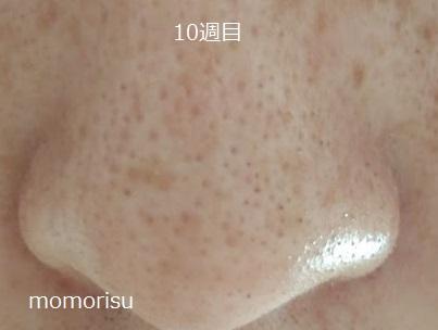 黒ずみ毛穴の画像10週目 正面