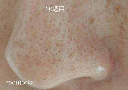 黒ずみ毛穴の画像10週目 左向き